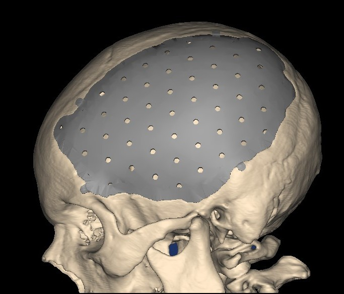 FDA clearance for 3D-printed cranial/craniofacial implant