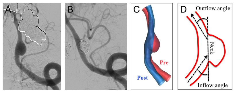 Angiograms and illustration of vessel straightening using stent placement in cerebral aneurysm