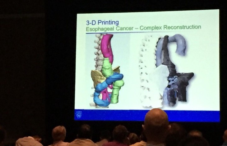 3D printing in healthcare: complex reconstruction case © Mayo Clinic