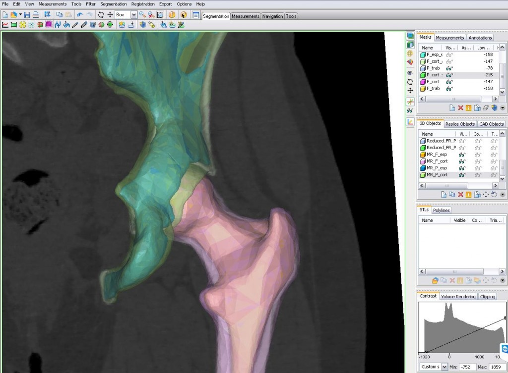 3D view of a hip joint: segmentation to better evaluate hip prostheses