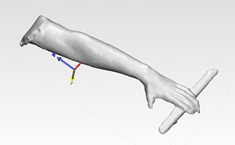 3D-printed cast: scan of the subject's surface geometry