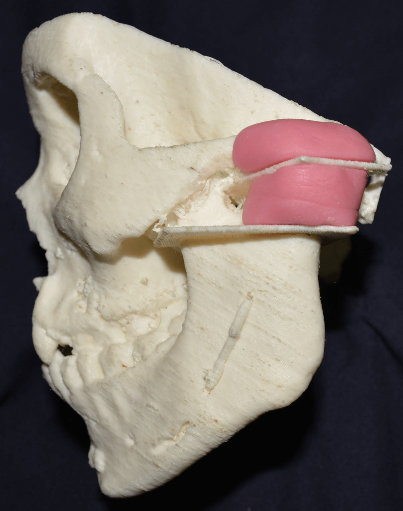 3D-printed model with surgical guides in place