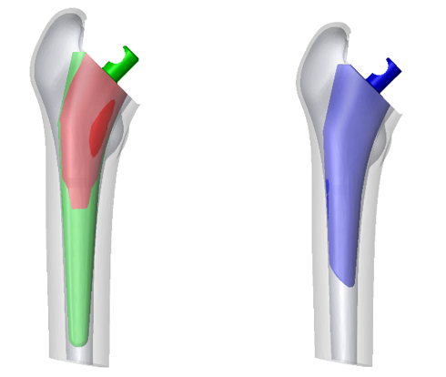 Left: Original design placed in the average bone model, showing overlap between the implant and the cortical bone. Right: Redesigned implantwith population analysis.