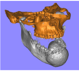 3D model of the bone and tumor © CRPM