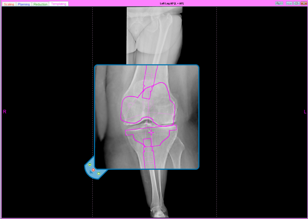 joint replacement procedure: knee - digital planning
