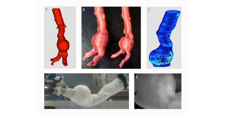 Disease Modeling: In-Vivo Aneurysm Analysis in 3D