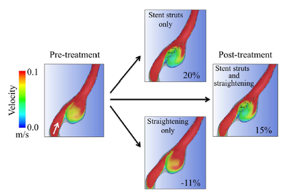 Stent Struts in Sidewall Cerebral Aneurysm Can Reduce the Flow Velocity Twice