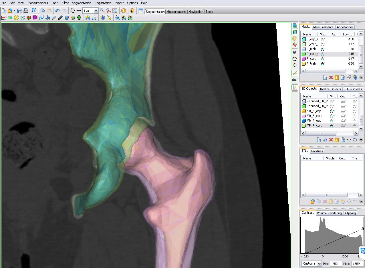 A New Method to Evaluate Hip Prostheses: Simulating Gait Cycles