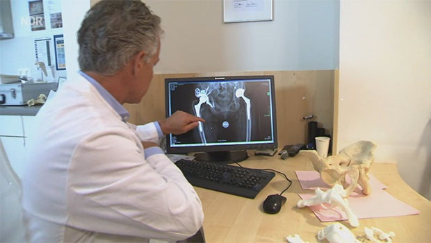 German Patient Walks Again with Patient-Specific 3D-Printed Hip Implant