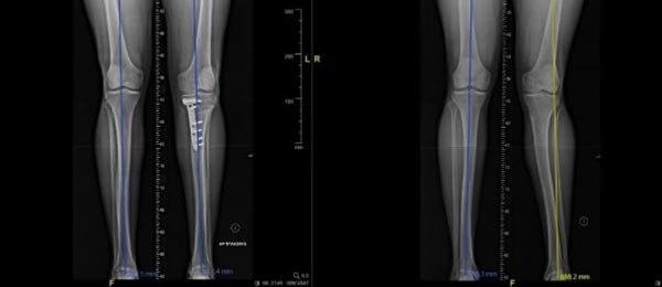 Correcting a Malaligned Tibia with Medical 3D Technology