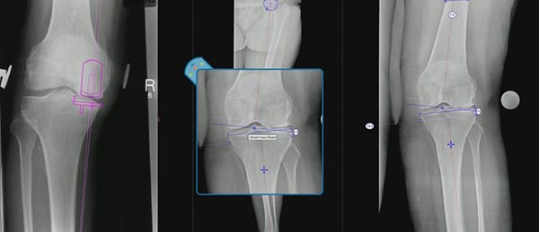 Planning Tibial & Femoral Osteotomy in 2D & 3D